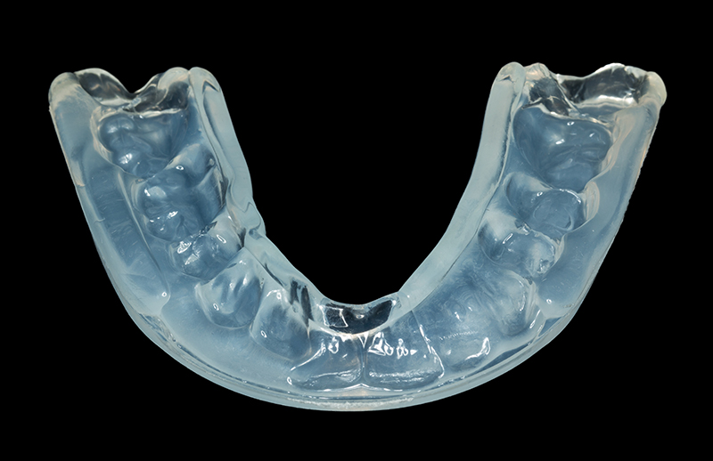 clear mouthguard custom from dentist